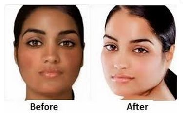 How To Lighten Skin Fast Overnight Permanently