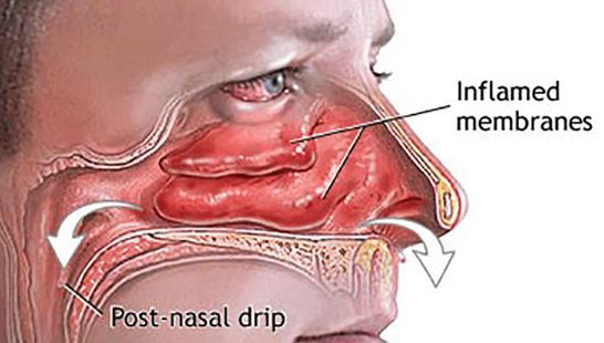 Make Nasal Saline Solution Clear Your Sinuses Naturally