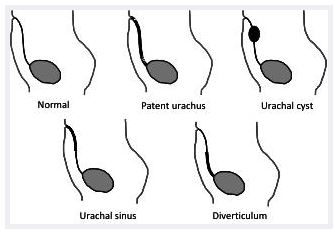 Types of urachal cyst abnormalities