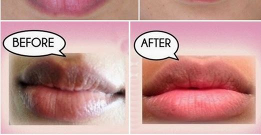 Use honey to lighten darkened upper lips