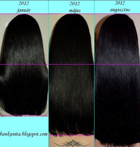 Biotin for hair growth before after pictures. Image source - Lalet' Blog