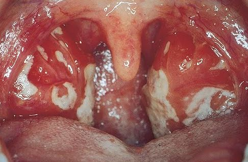 White Spots on Tonsils, No Pain, STD, Not Strep, Fever ...