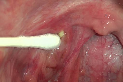Use a q-tip, finger or bobby pin to remove tonsil stones that are visible in yoru throat