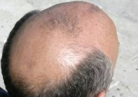 Saw Palmetto treatment for hair loss