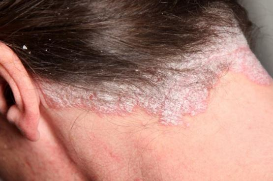 Psoriasis on scalp