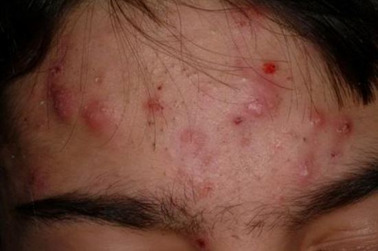 Infected Pimple (on Face, Nose, Leg): From Staph, Yeast ...