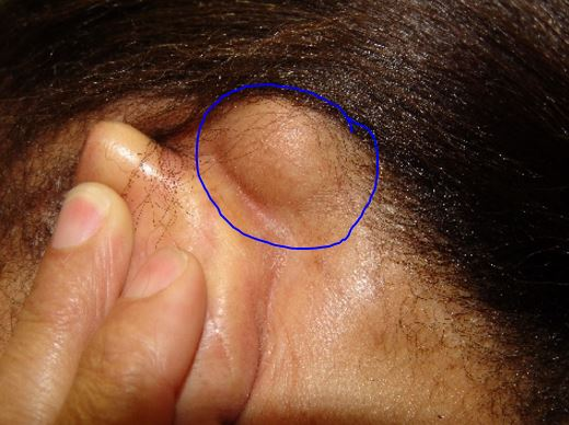 Large lipoma bump behind ears - movable
