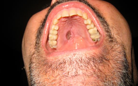 Lovely Hard Dark Colored Lump On Roof Of Mouth Cancer Oral ...