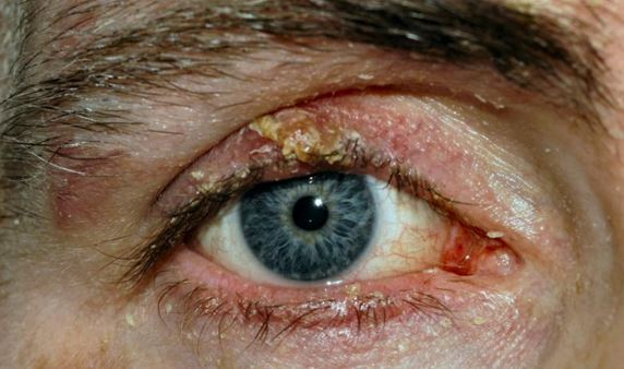 Blepharitis is a likely precursor of trichiasis