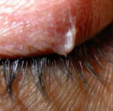 Ingrown hair on eyelash