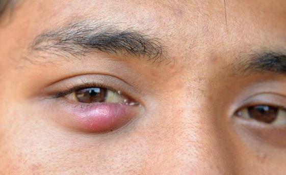 Lump under eyelid or pimple under eyelid