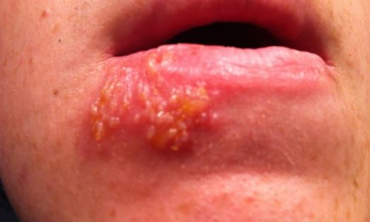 Cold Sore Stages Pictures Timeline Early Contagious