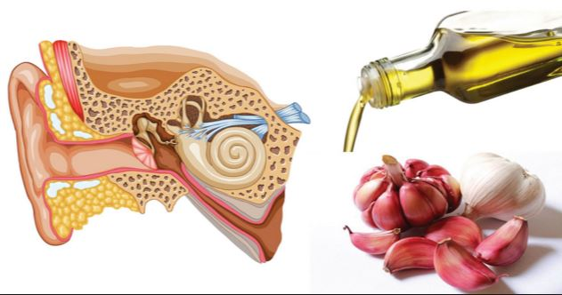 Garlic oil for ear infection treatment and unclogging clogged ears