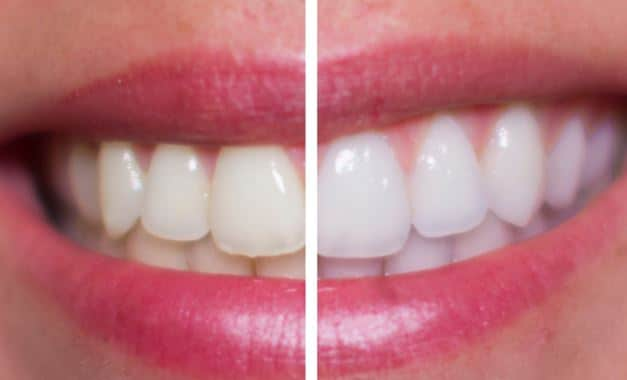 Gargling with hydrogen peroxide for teeth whitening and infections