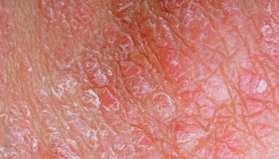 Dermatitis and dry itchy rashes on penis can result from scratching and irritation