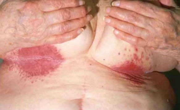 rash that won't go away with steroids