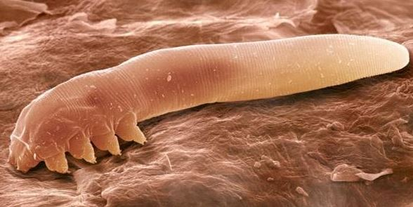 eyelid-mites-may-cause-eyebrows-to-itch