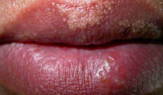 Pictures of fordyce granules on lips