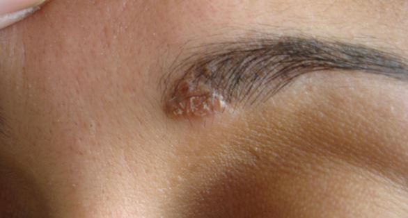 psoriasis-and-eczema-on-eyebrows-may-cause-them-to-itch
