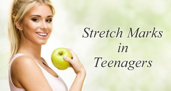 Stretch marks are also common in teenagers and appear as silver stripes