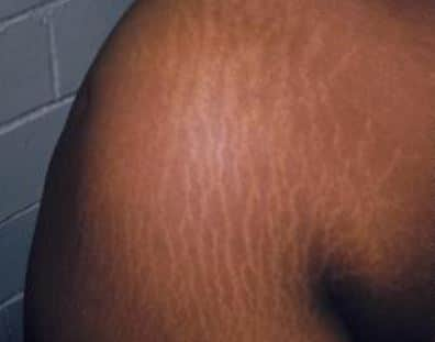 Stretch marks on shoulders and upper back