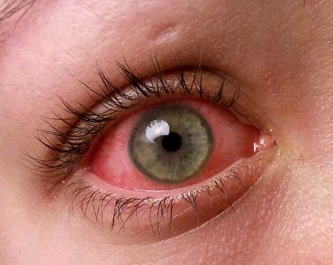 How To Get Rid Of The Pink Eye Naturally