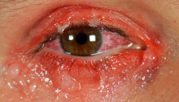 How To Get Rid Of A Red Eye Naturally