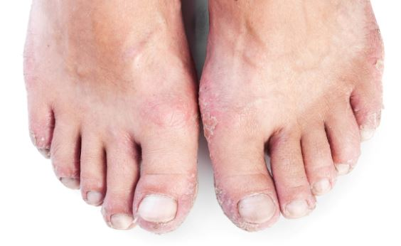 dry-feet-may-start-to-peel-off