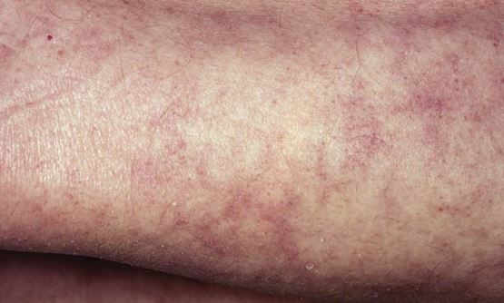 Mottled skin symptoms