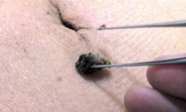 How To Clean My Belly Button Ring