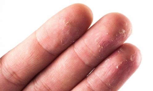Peeling of Fingertips
