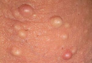 White Bumps on Scrotum or Testicle Balls, Small, Hard and