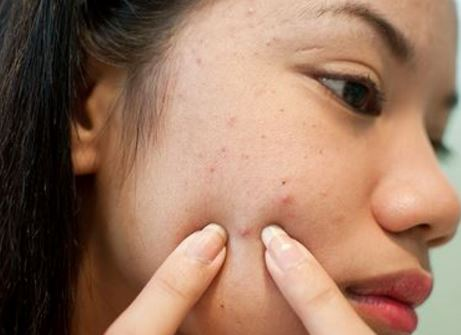 How to remove black spots on face fast