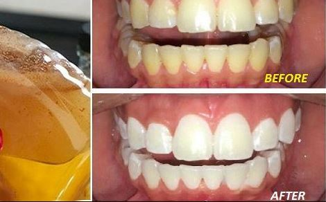 Apple cider vinegar teeth whitening