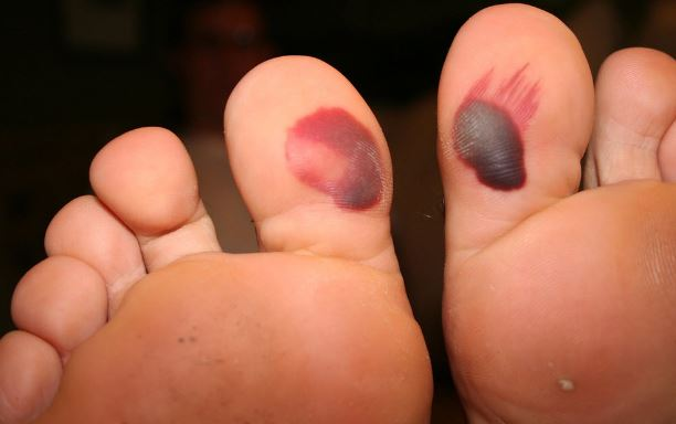 Blood blisters on toes