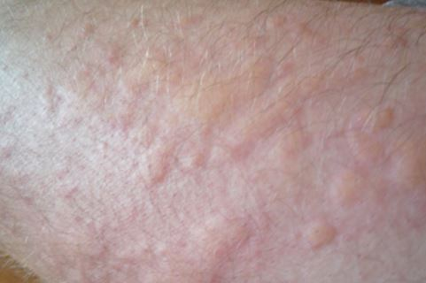 Heat Lumps On Legs Skin Pictures Causes Treatment