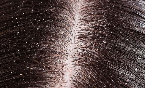 How to get rid of dandruff fast permanently