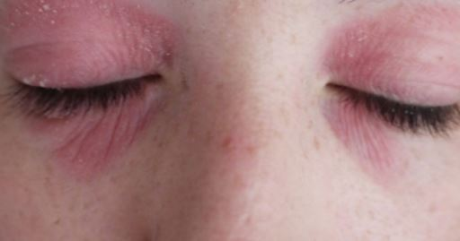 Sunburn spots around eyes