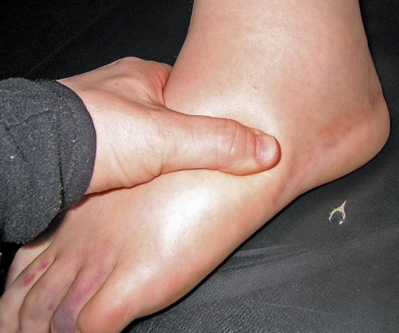 Idiopathic edema may cause generalized edema