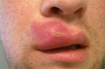 Swollen upper lip due to whiteheads