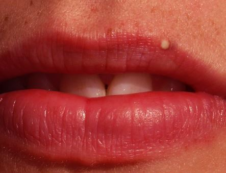 small white bumps on lip spots whitish spots on lips johny fit white spots on lips pictures. Black Bedroom Furniture Sets. Home Design Ideas