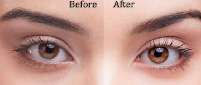 Before and after lightening eye color