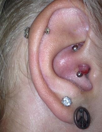 Infected daith piercing bump or keloid