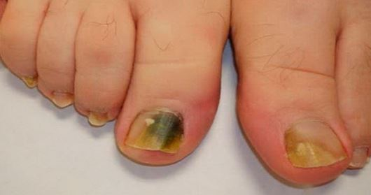 Brittle Toenails, Causes, Breaking Off, Dry, Thick, Yellow ...