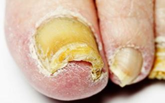 Brittle Toenails Causes Breaking Off Dry Thick Yellow